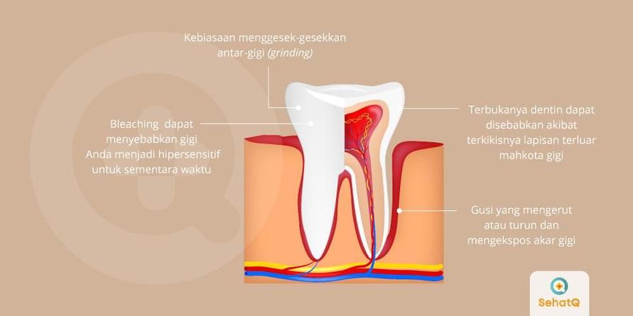 Gigi sensitif disebabkan oleh lapisan gigi bagian dalam terbuka dan menimbulkan ngilu saat terpapar rangsangan