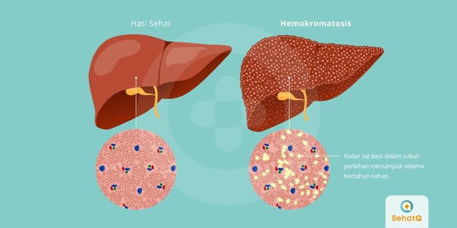 Hemokromatosis dapat mengakibatkan berbagai penyakit seperti penyakit jantung, masalah hati dan diabetes.