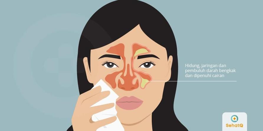 Hidung tersumbat biasanya bersifat sementara, tapi dapat menjadi penyakit serius bagi anak-anak dan bayi