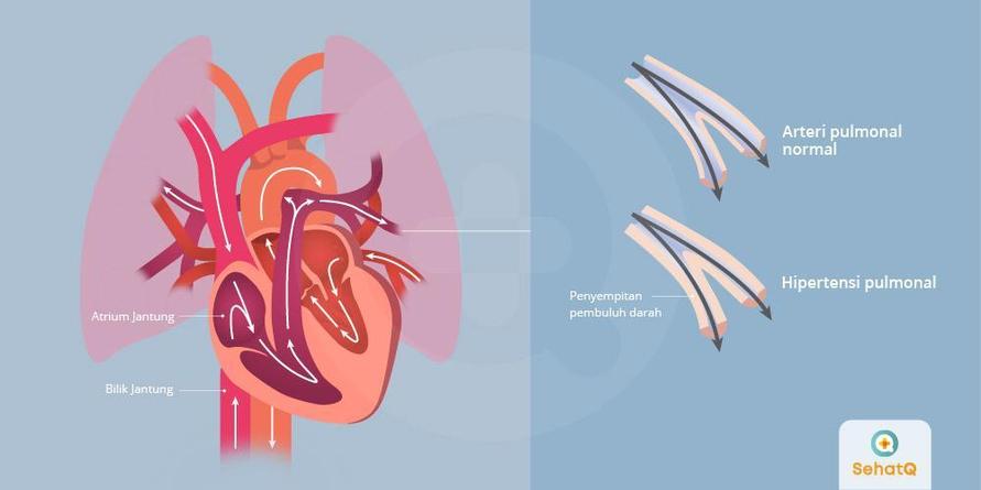 Hipertensi pulmonal ditandai tekanan darah yang tinggi dan gejala seperti sesak napas.