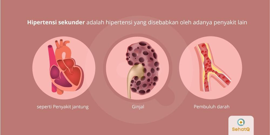 Hipertensi sekunder adalah hipertensi yang disebabkan oleh penyakit yang penyakit jantung, ginjal dan lainnya