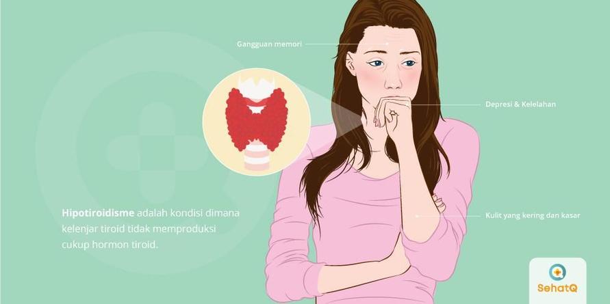 Hipotiroidisme adalah kondisi saat kelenjar tiroid tidak memproduksi cukup hormon tiroid