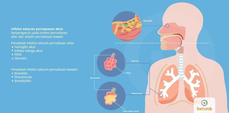 Gangguan sistem pernapasan atas dan bawah bisa disebut infeksi saluran pernapasan akut.