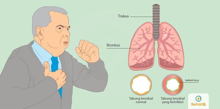 Infeksi saluran pernapasan dapat menyebar lewat batuk atau bersin. Biasanya orang terkena infeksi akan merasakan gejala seperti bersin, hidung tersumbat, dan merasa tidak enak badan.