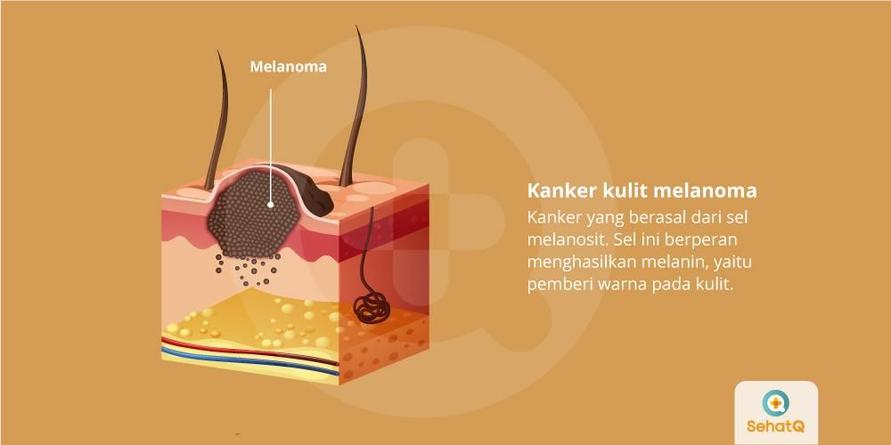 Penjelasan pertumbuhan tahi lalat menjadi kanker kulit melanoma