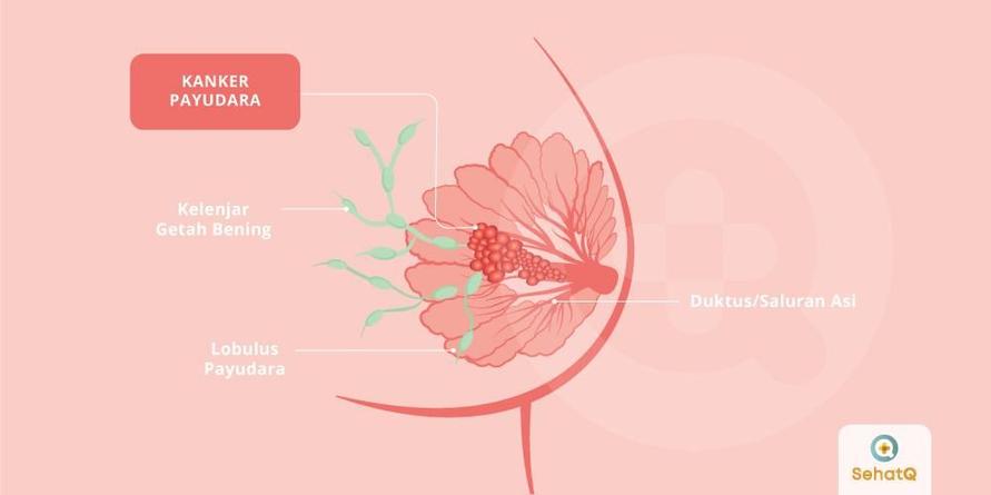 Informasi Akurat Dalam Mengenali Kanker Payudara Sejak Dini Di Sehatq.Com