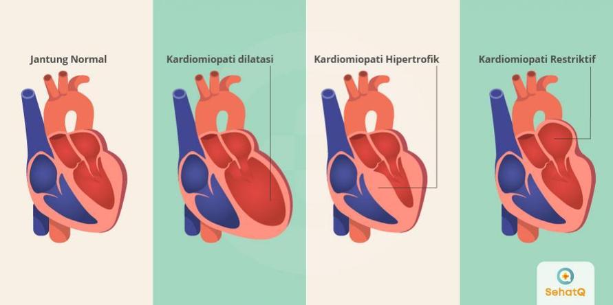 Penyakit kardiomiopati yang tidak segera diobati dapat berakibat fatal.