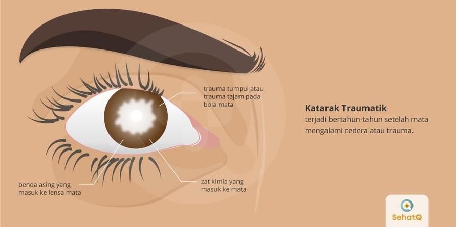 Katarak traumatik biasanya terjadi bertahun-tahun setelah cedera atau trauma pada mata