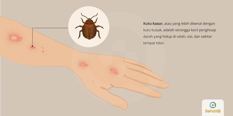 Kutu kasur akan mengigit area kulit yang terbuka saat malam hari.