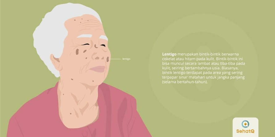 Lentigo merupakan penyakit kulit yang disebabkan paparan sinar UV (ultraviolet)