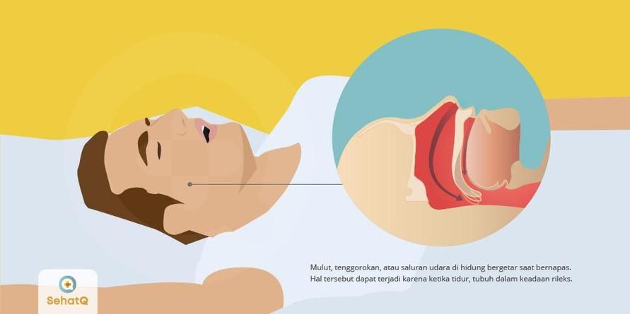 Mendengkur alias ngorok disebabkan oleh lidah, mulut, tenggorokan, atau saluran udara di hidung yang bergetar saat bernapas
