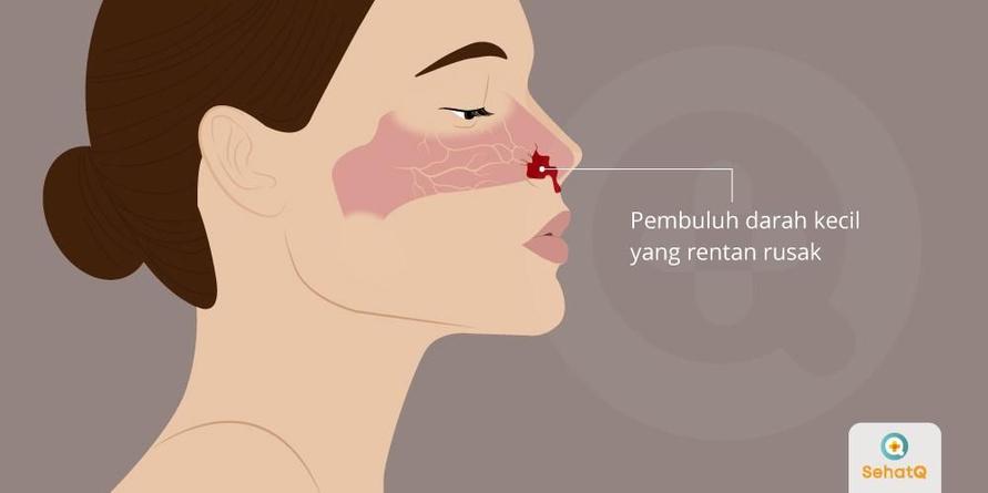 Penyebab mimisan adalah udara kering atau mengorek hidung terlalu dalam