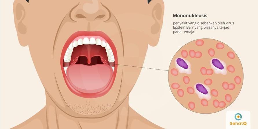 Demam kelenjar dikenal juga sebagai kissing disease yang disebabkan oleh virus epstein-barr (EBV).