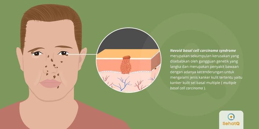 Gejala utama Nevoid Basal Cell Carcinoma Syndrome (NBCCS) adalah kanker kulit dan muncul tumor jinak pada rahang.