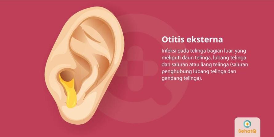Masuknya air ke telinga, bisa menimbulkan otitis eksterna.