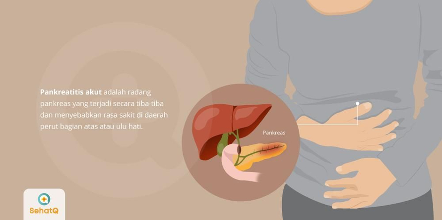Pankreatitis akut atau radang pankreas ditandai dengan nyeri pada perut dan umumnya disebabkan batu empedu.