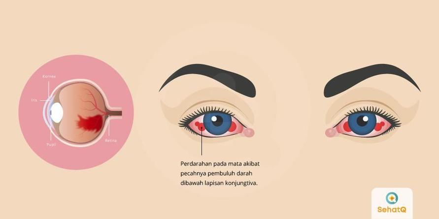 Perdarahan subkonjungtiva adalah pecahnya pembuluh darah yang terjadi pada lapisan bening di bawah mata.
