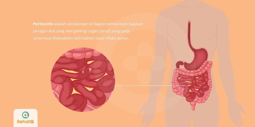 Peritonitis disebabkan infeksi jamur dan bakteri atau adanya robekan pada dinding perut yang membuat peradangan.