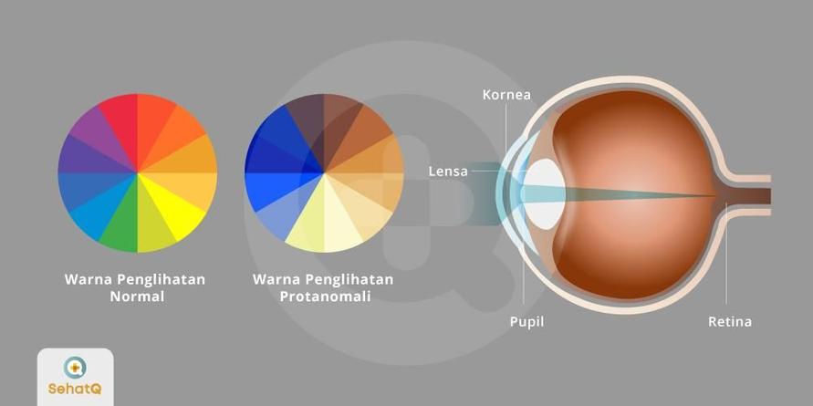 Sel kerucut L yang abnormal dapat menyebabkan retina kesulitan menangkap warna merah atau disebut juga protanomali.