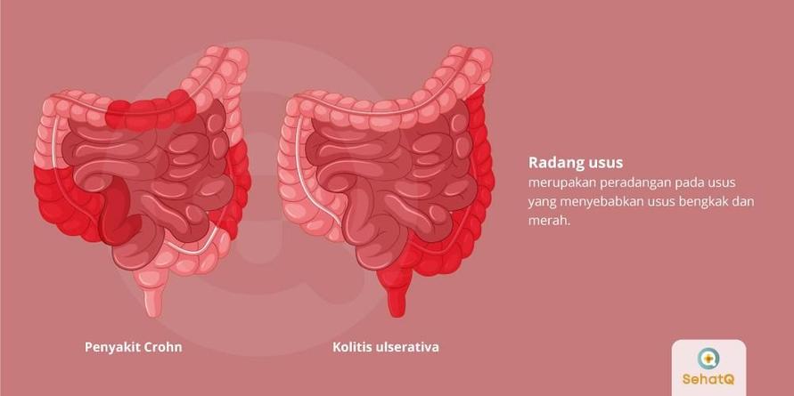 Radang usus mengakibatkan pembengkakan pada usus, dan bisa terjadi secara berulang.
