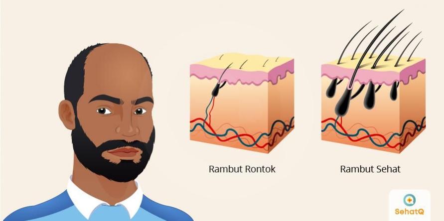 Rambut rontok dapat terjadi karena faktor genetik, perubahan hormon, kondisi medis atau efek samping dari mengonsumsi obat-obatan.
