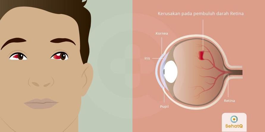 Retinopati diabetik adalah bentuk komplikasi diabetes yang memengaruhi mata. Hal ini disebabkan oleh kerusakan pada pembuluh darah dari jaringan yang peka terhadap cahaya di bagian belakang mata (retina).