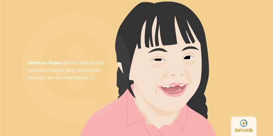 Sindrom down adalah penurunan intelektual secara menyeluruh yang disebabkan oleh kelainan genetik di kromosom 21