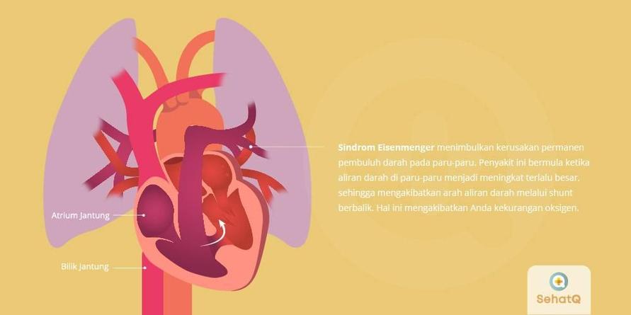 Sindrom Eisenmenger menyebabkan arteri pada paru-paru menjadi kaku, sempit dan meningkat tekanannya.