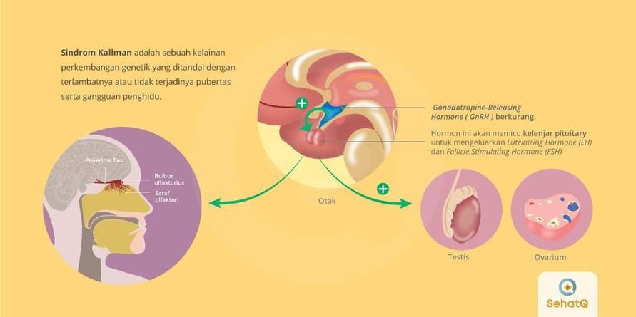 Sindrom Kallman adalah kelainan perkembangan genetik yang ditandai dengan terlambatnya pubertas serta gangguan penghidu