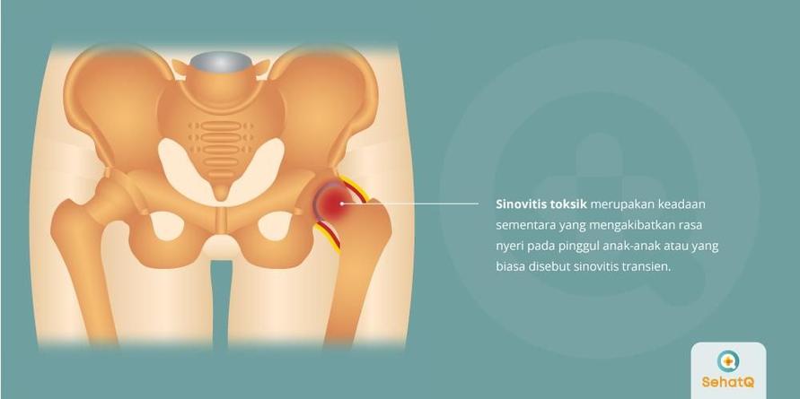 Gejala sinovitis toksisk adalah nyeri pada pinggul, paha bagian tengah, lutut dan demam.