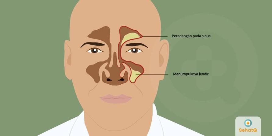 Penderita sinusitis merasa nyeri di sekitar mata dan wajah karena lendir menumpuk