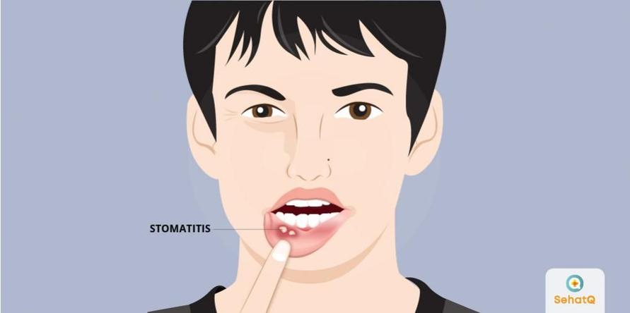 Stomatitis dapat timbul pada pipi bagian dalam, gusi, lidah, maupun bibir