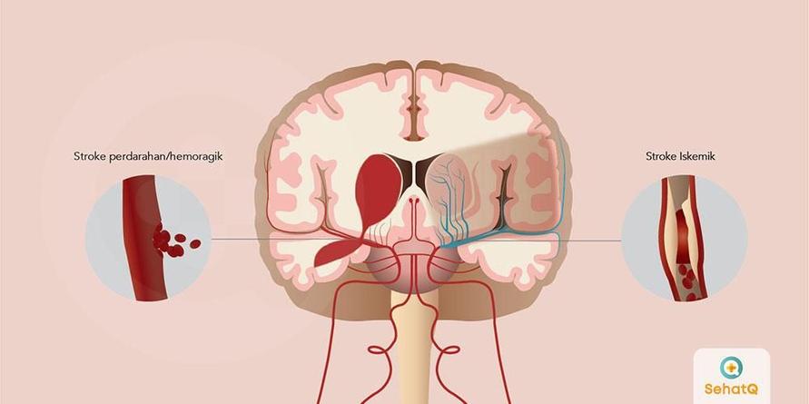 Stroke adalah keadaan serius dimana suplai darah ke bagian otak terganggu atau berkurang
