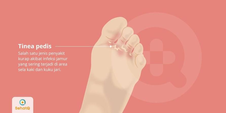Tinea pedis atau kutu air adalah infeksi jamur pada sela jari kaki dan kuku kaki