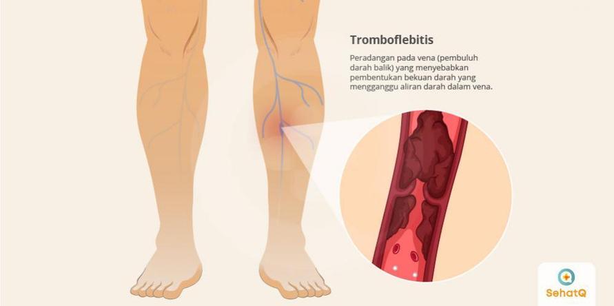 Tromboflebitis dapat dicegah dengan tidak terlalu sering menggunakan pakaian ketat, banyak bergerak dan banyak minum air.