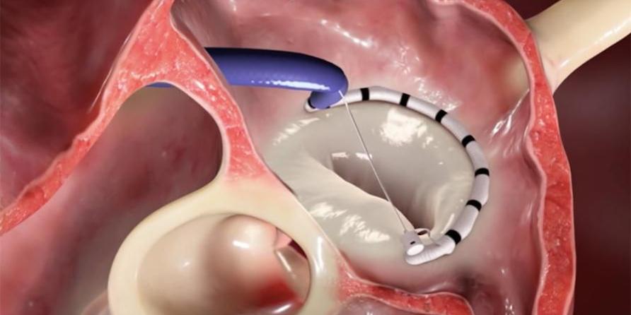 Annuloplasty dilakukan untuk mengencangkan cincin di katup jantung