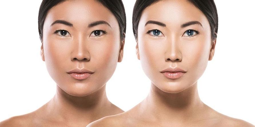 Cosmetic lateral canthoplasty bertujuan menurunkan sudut mata