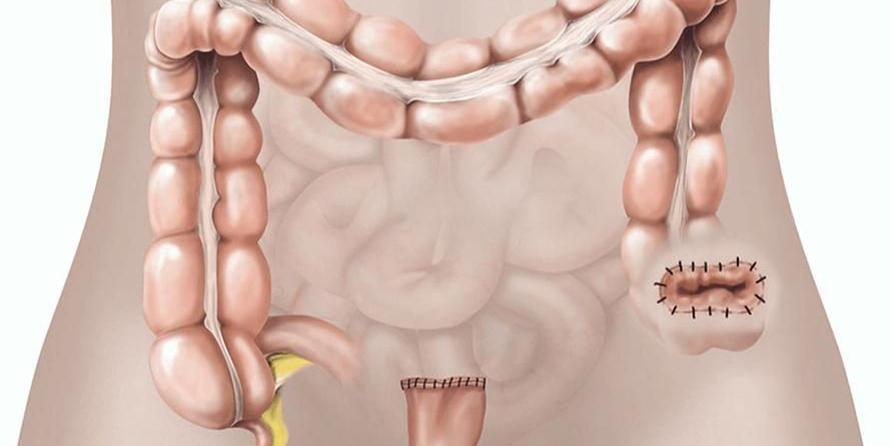 Hartmann's procedure reversal memungkinkan pasien BAB secara normal