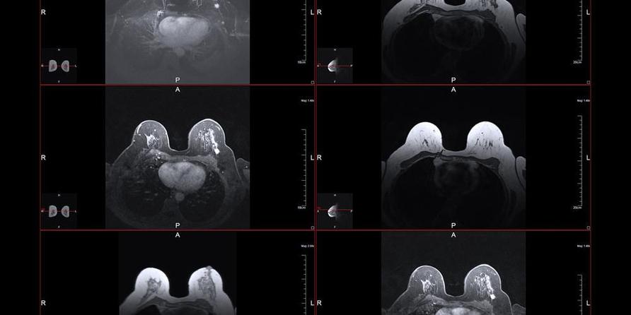 MRI payudara dilakukan antara lain untuk mendeteksi kelainan pada payudara.