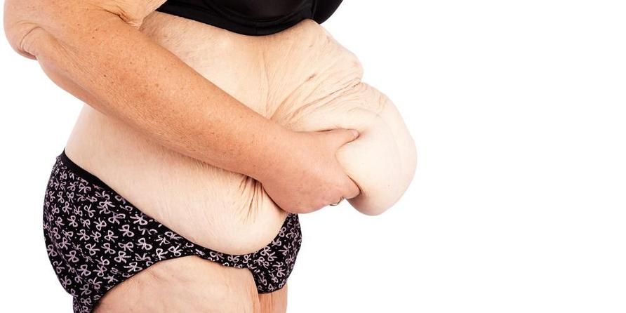 Panniculectomy berguna untuk mengangkat kulit yang menggelambir di perut.