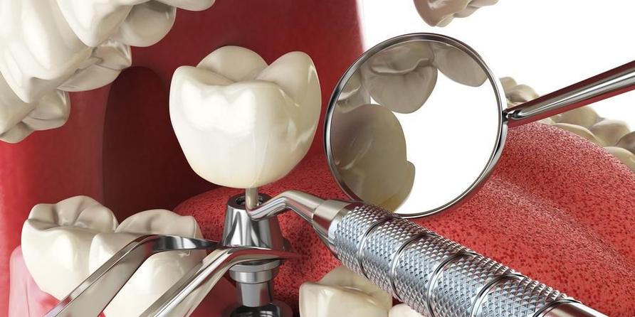 Pemasangan gigi implan dilakukan dengan gigi tiruan yang menyerupai gigi asli.