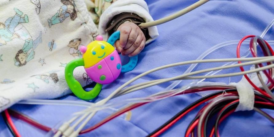 Prosedur Norwood diperlukan oleh bayi dengan sindrom jantung kiri hipoplastik.