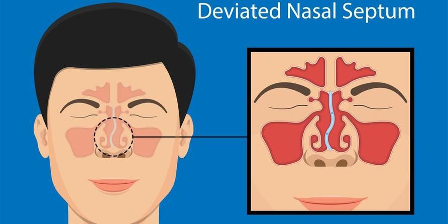 Setoplasty diperlukan untuk mengatasi kondisi deviated nasal septum atau cacat septum nasal.