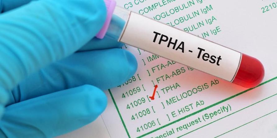 Tes TPHA atau Treponema Pallidum hemagglutination dilakukan melalui pengambilan sampel darah.