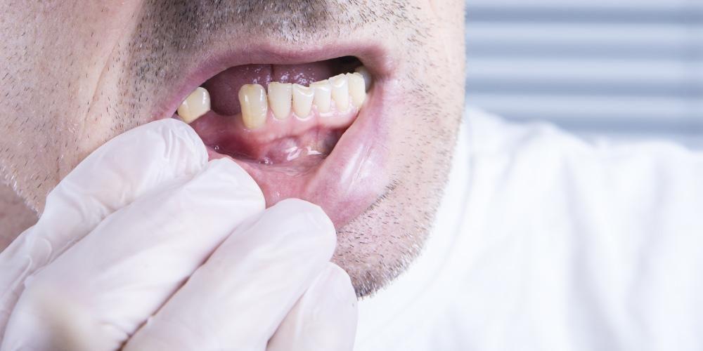 Gigi goyang bisa disebabkan oleh penyakit gusi