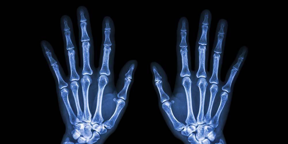 Tulang jari tangan penting dalam membentuk tangan manusia