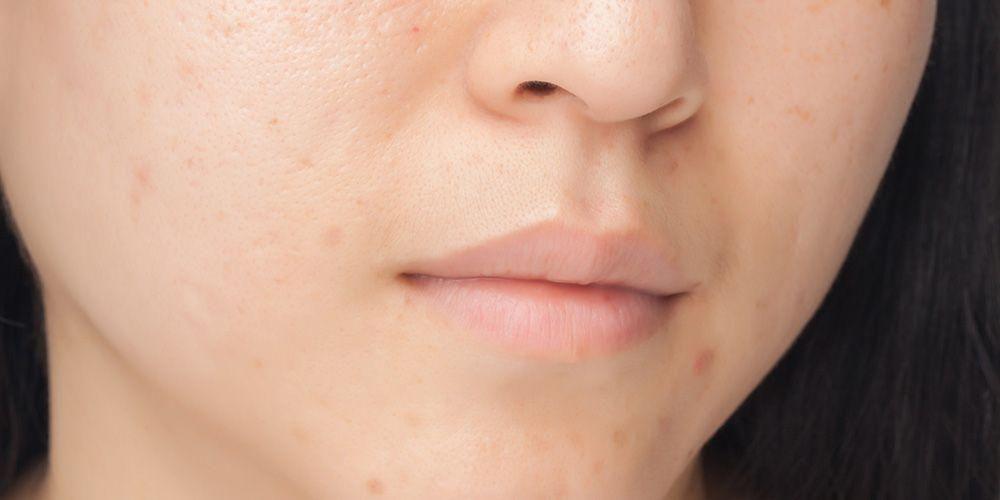 Menggunakan krim pencerah kulit dapat memudarkan flek hitam di wajah
