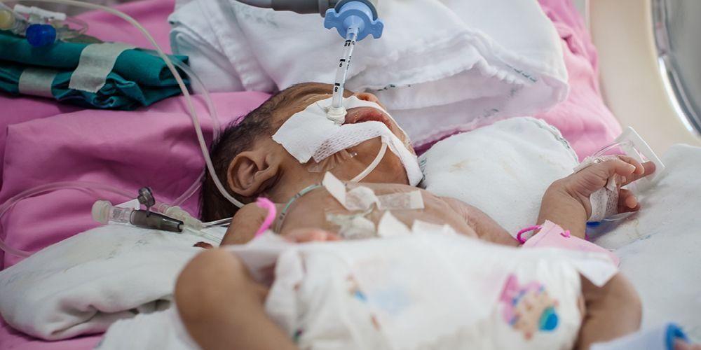 Mencegah NEC pada bayi dapat dilakukan dengan pemberian ASI atau susu formula khusus yang mengandung probiotik