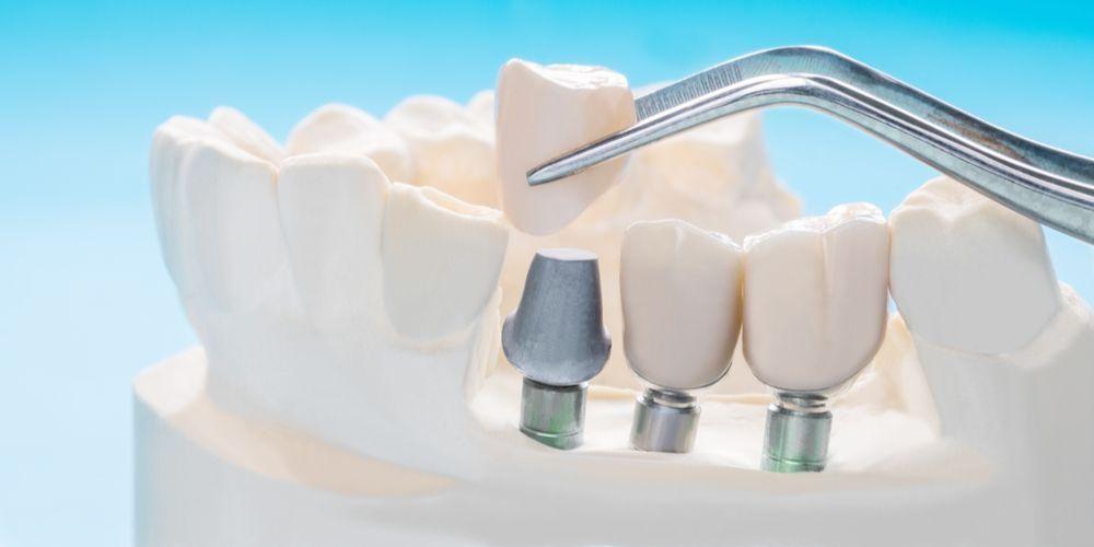 """Implan gigi bisa menjadi solusi permanen gigi ompong"""""""