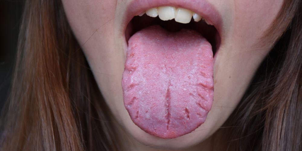 Sindrom Melkersson-Rosenthal menjadi salah satu penyebab lidah pecah-pecah.